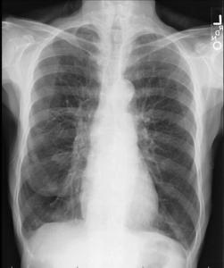 X光片 慢性支氣管發炎 和 肺氣腫 Emphysema